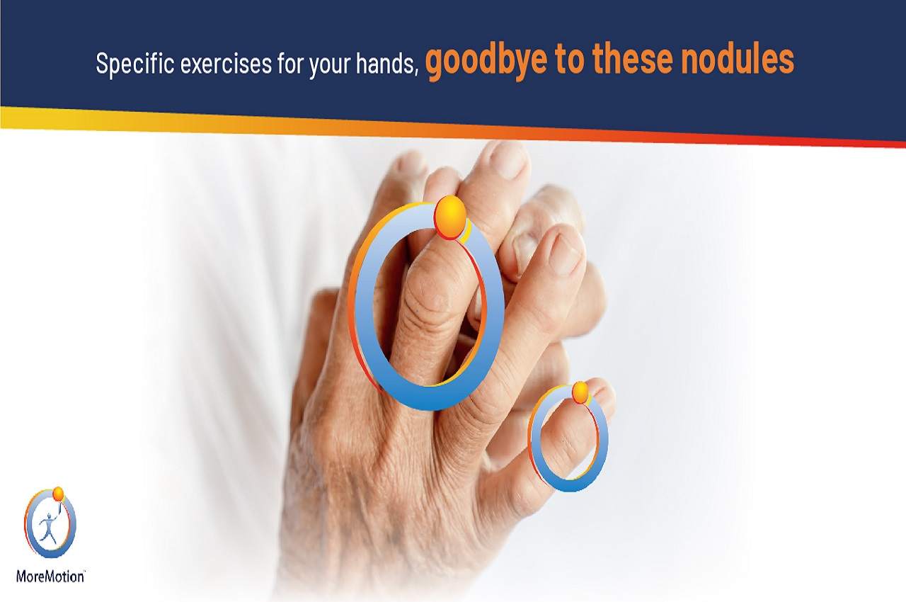 exercises for Osteoarthritis of the Hands