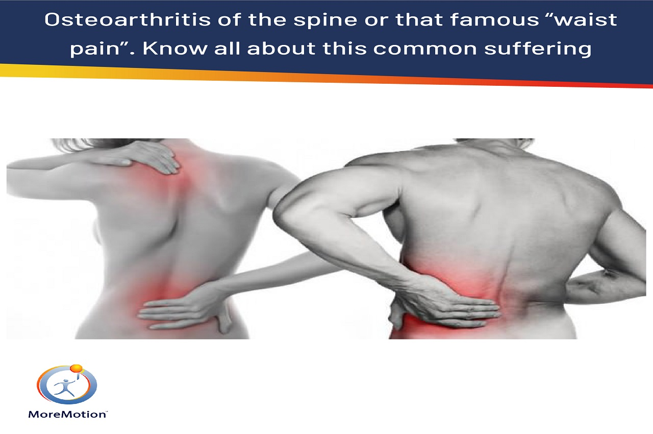 Osteoarthritis of the spine or that famous waist pain